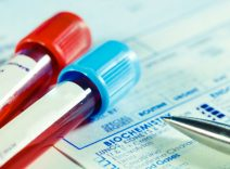 Nota Técnica: Procedimentos a serem adotados para a utilização Testes Rápidos Dengue, Chikungnya e Zika